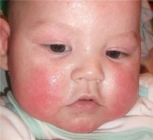 почему горят щеки у ребенка