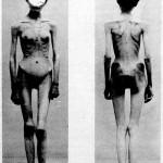 Anorexia_case_1900
