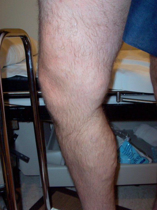 Varicose_vein_after_treatment_by_endovenous_laser_therapy_(EVLT)